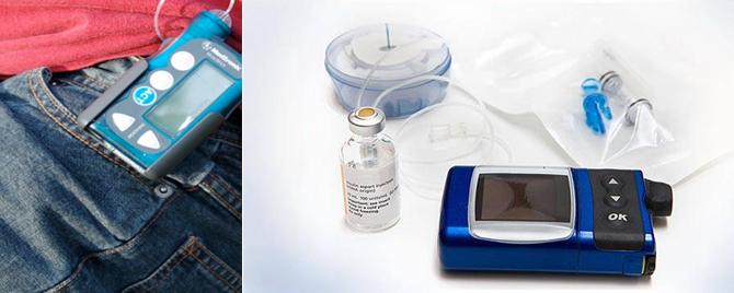 Insulin Pump Featured