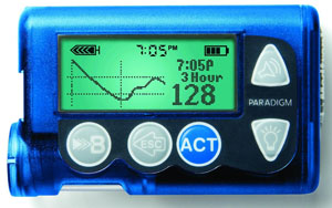 paradigm insulin pump